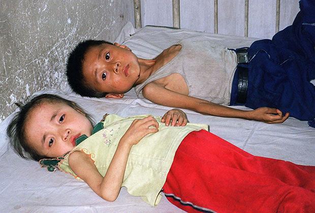 Дети — жертвы голода в КНДР, июнь 1997 года